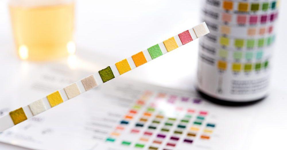разноцветная тест-полоска